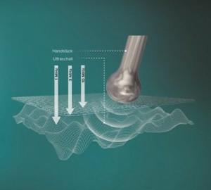 ultrageluid afbeelding